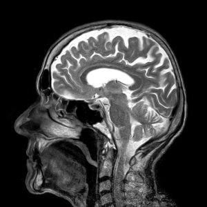 Multiple Sclerosis Foundation - 5 Things to Know About MRIs