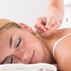 woman-being-treated-with-acupuncture-(1).jpg